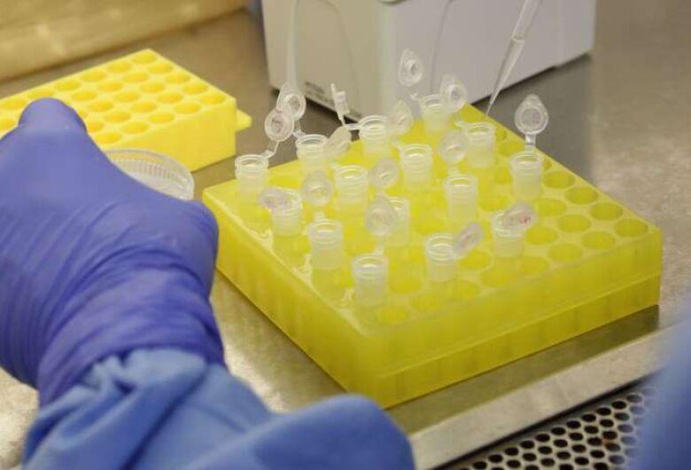 Pesquisadores da UFSC identificam nova variante do coronavírus em morador de Jaraguá